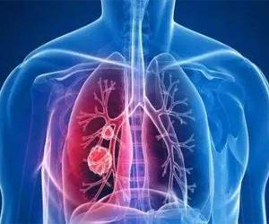 英国新技术可较早检测出肺癌