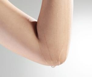 手肘肌肤如何快速美白 细节护肤