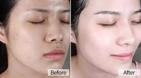 改善皮肤暗黄的5种方法 这样让你皮肤嫩黄