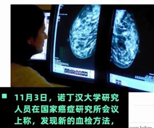 血检或能提前5年测出乳腺癌 又一大女性福音