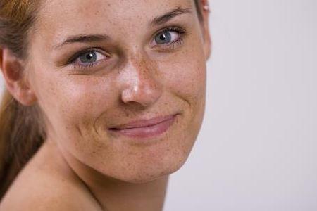 女人脸上总长斑或是这两大原因