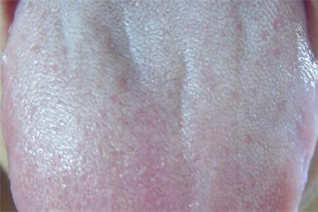 女人出现舌苔厚白或是这四个原因