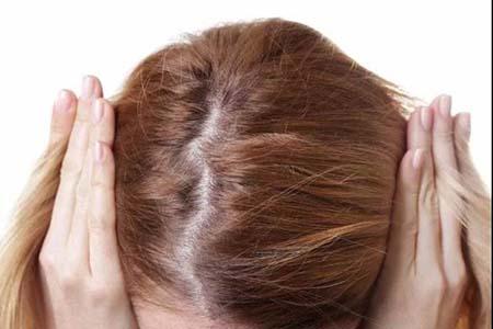 产后脱发差点成了秃子,脱发除了吃还可以这样补救