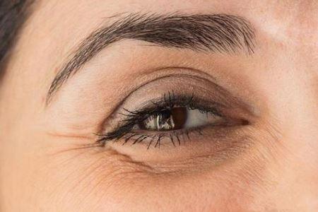 两种淡化眼部皱纹的方法